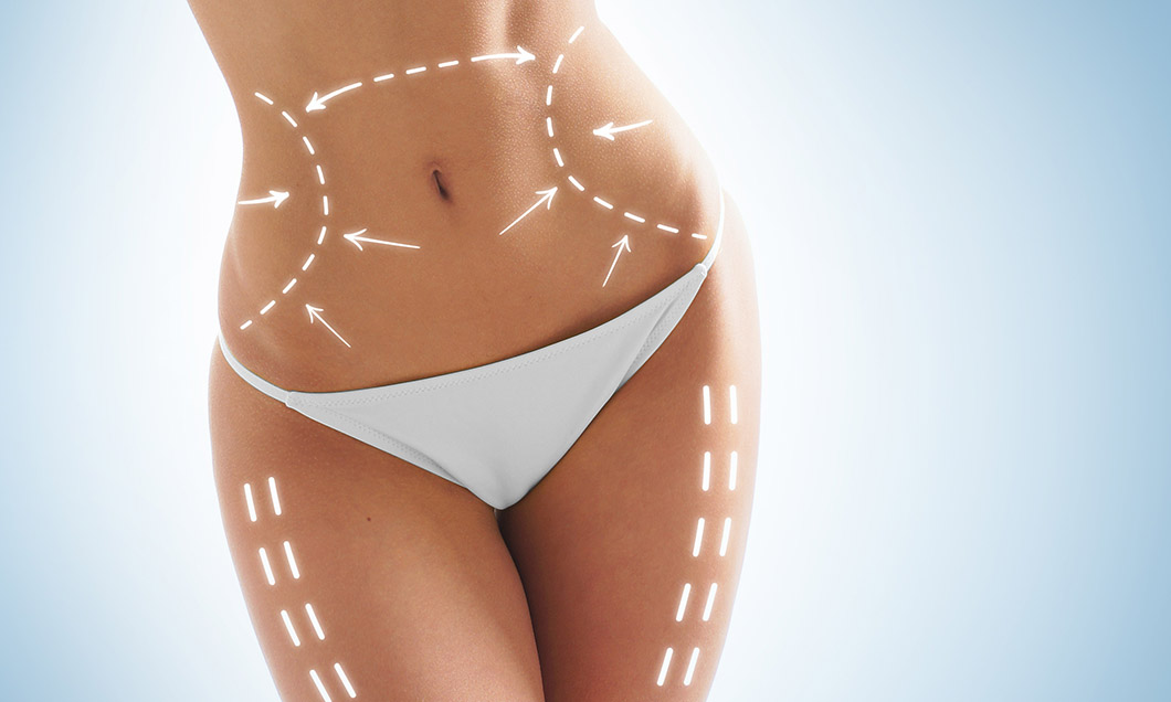 Mesotherapy Body